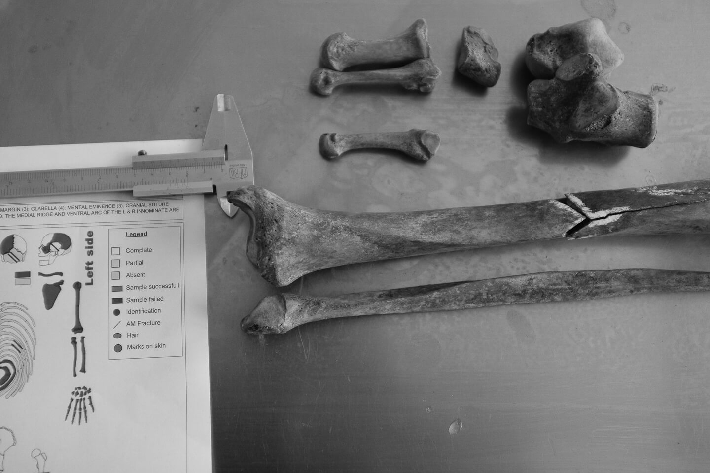 Human bones and fragments on the table at ICMP identification facility in Tuzla.
